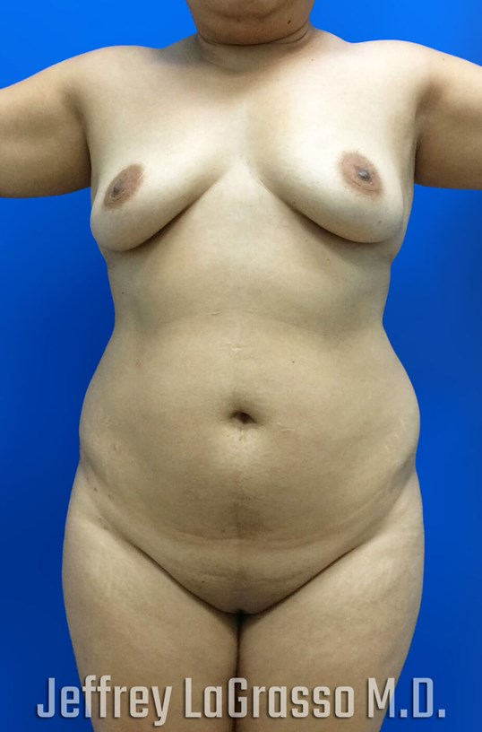 Liposuction BBL Before Front View