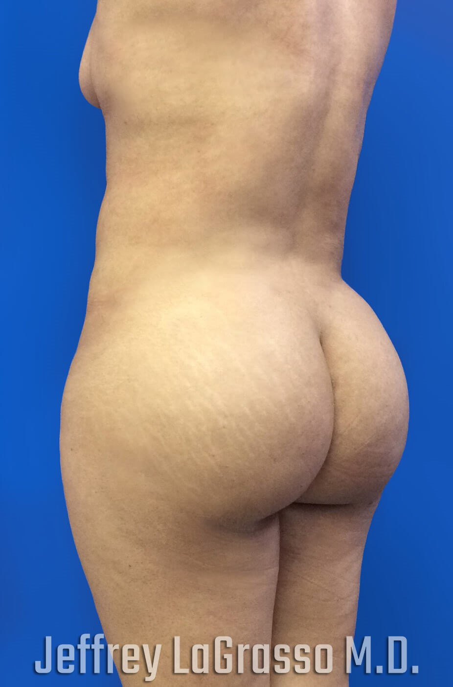 Brazillian Butt Lift After Oblique View