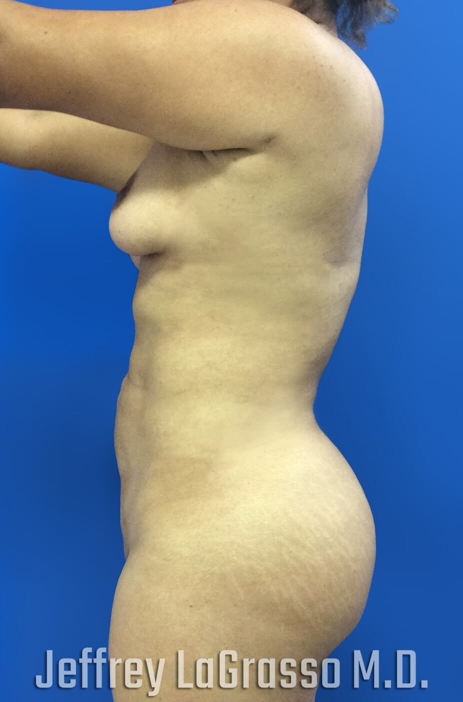 Brazillian Butt Lift After Lateral View