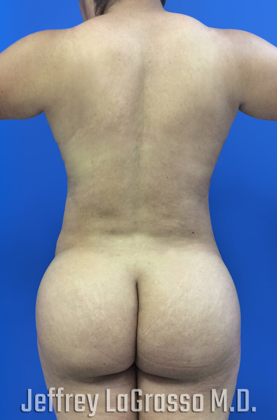 BBL Fat transfer with lipo After back View