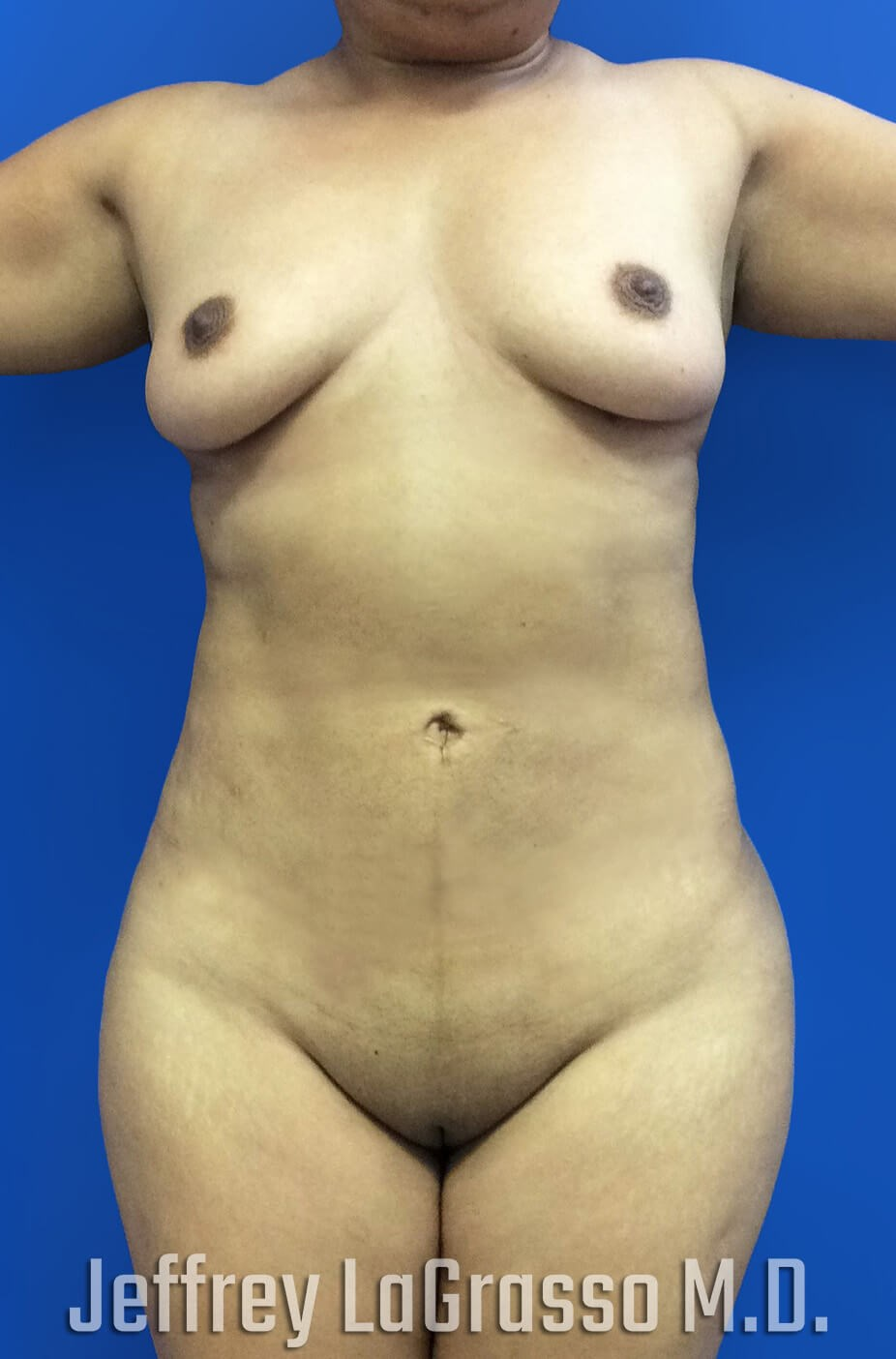 Liposuction BBL After Front View