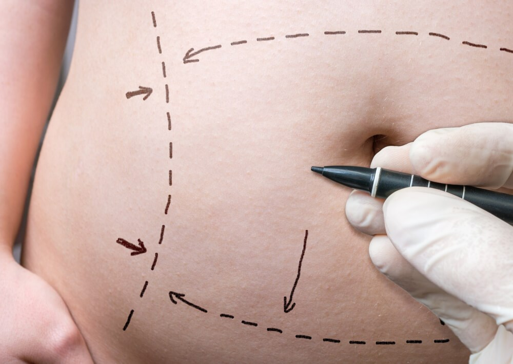 tummy tuck scar revision