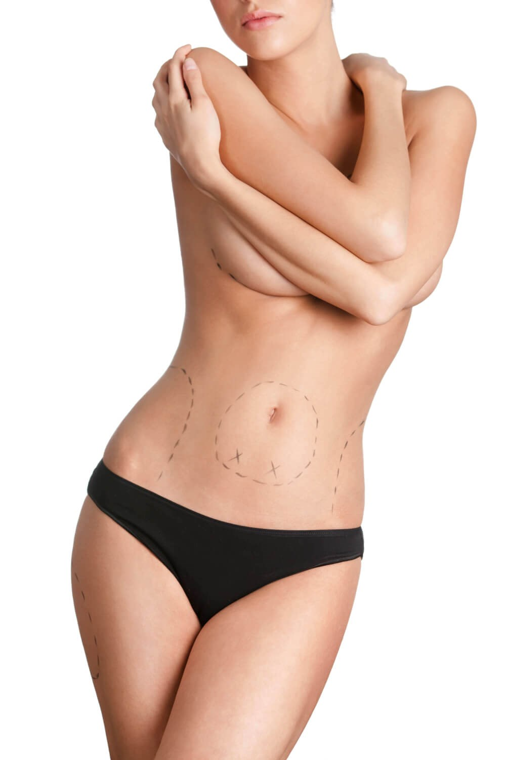 Body With Surgical Marker Line